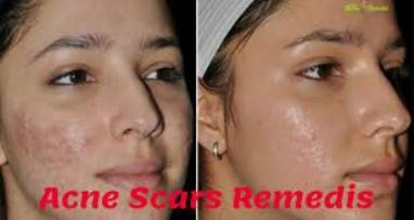 Home remedies to remove acne scars quickly